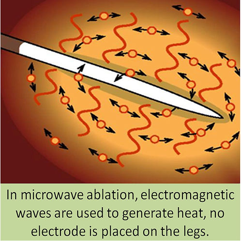 The principles of microwave ablation.