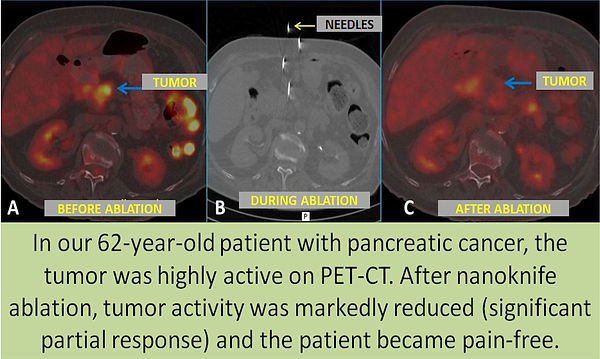 Nanoknife ablation may eliminate pain of pancreatic cancer.