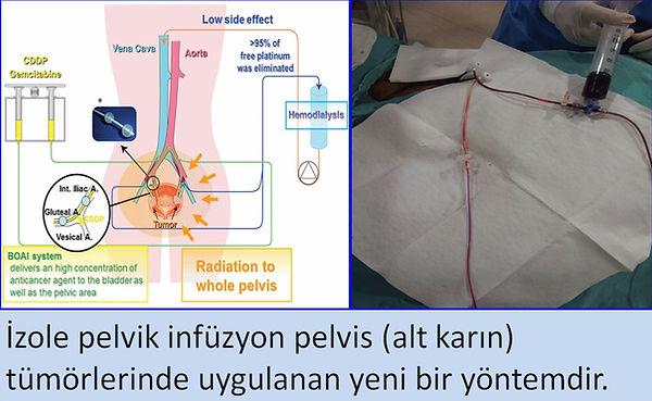 pelvis tümörlerinde izole pelvik infüzyon tedavisi.