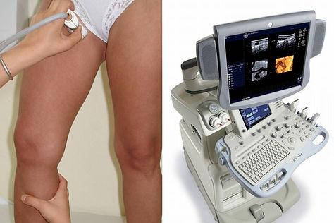 İç varis, yanlış bir ultrason tanısı olabilir.