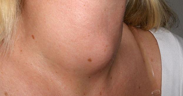 İyi huylu (benign) tümörlerde minimal invaziv girişimsel tedaviler.