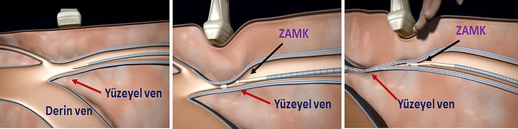 Yapışkan (zamk) tedavisinde, yetmezlikli damarın duvarları yapıştırılarak kapatılır.