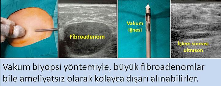 Vakum biyopsi yöntemiyle, fibroadenomlar kolayca dışarı alınabilirler.