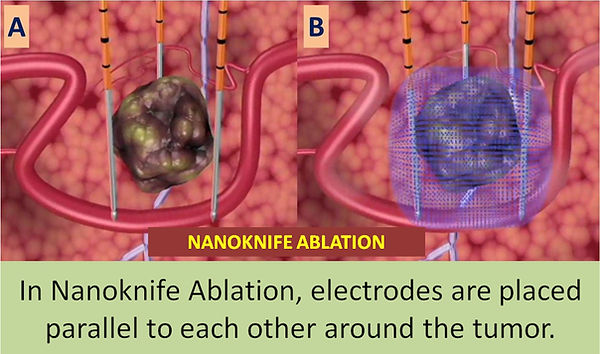 In nanoknife ablation, electrodes must be placed around the tumor.