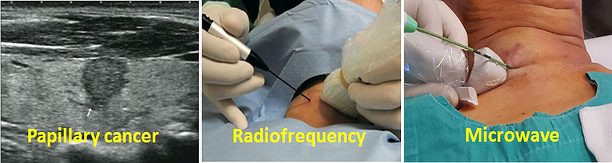 Percutaneous radiofrequency or microwave ablation may be a good alternative in the treatment of papillary microcarcinomas.