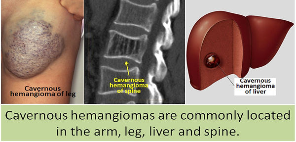 Common sites of cavernous hemangiomas.