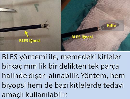 BLES ile memedeki kitleler birkaç milimetrelik bir kesiden ameliyatsız olarak dışarı alınabilir.