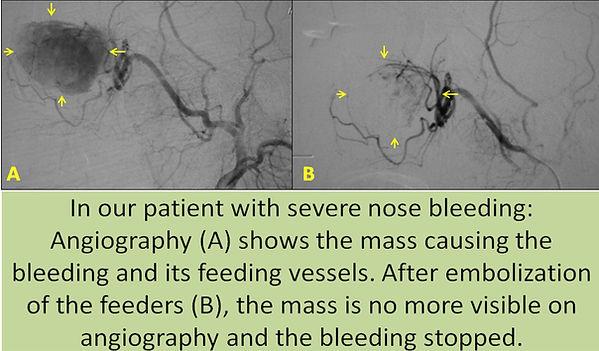 Embolization in tumor bleeding.