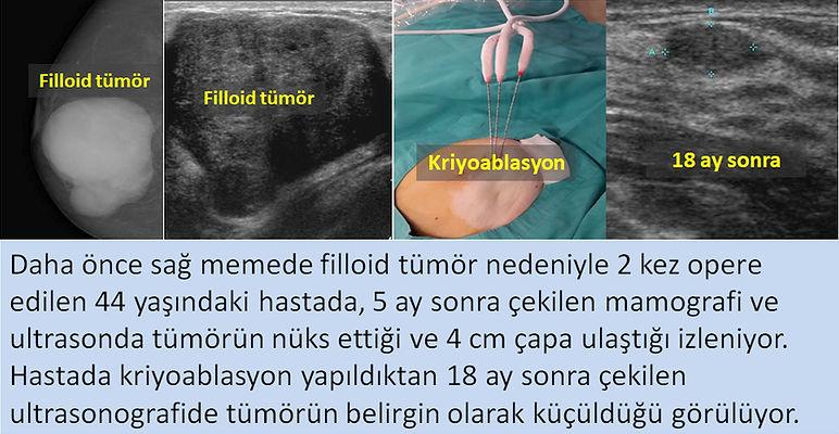 Nüks filloid tümörde kriyoablasyon tedavisi