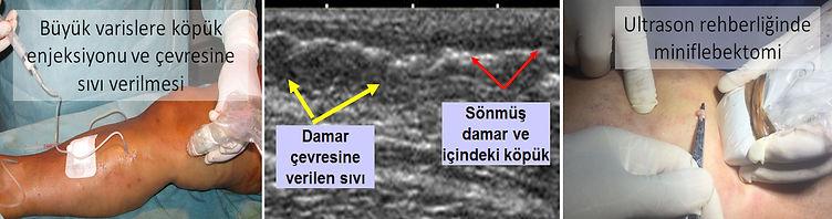 Miniflebektomi, damar içine köpük verilerek yapılırsa daha etkili ve kolay biçimde yapılabilir (ultrason rehberliğinde miniflebektomi).