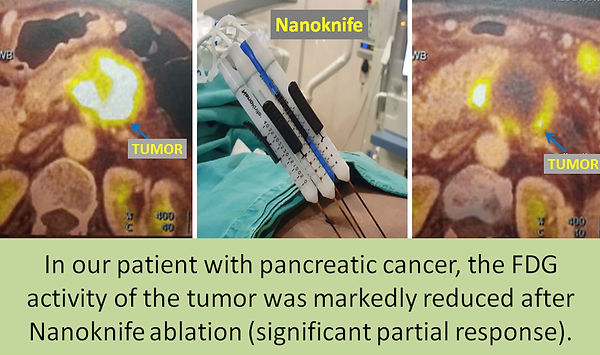 Nanoknife ablation is commonly used in pancreatic cancer.