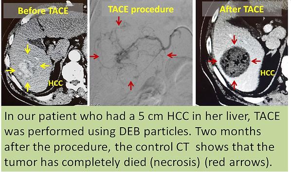 Transarterial chemoembolization in HCC.