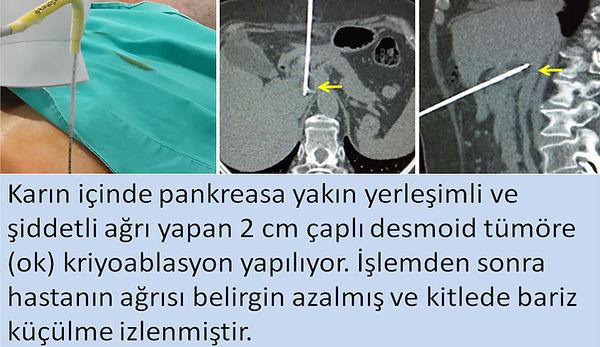 Karın içinde pankreasa komşu desmoid tümörü (agresif fibromatozis) olan hastamızda tomografi rehberliğinde kriyoablasyon uygulaması.