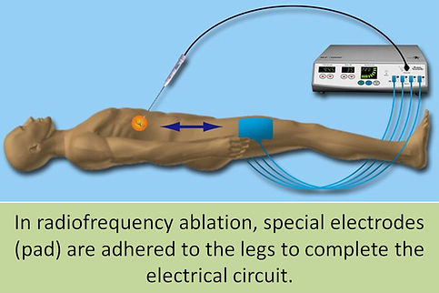 In radiofrequency ablation special electrodes must be attached to leg.
