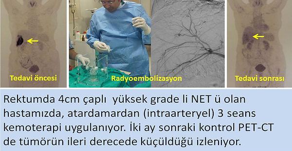 Nöroendokrin tümörlerde (NET) karaciğer metastazlarına radyoembolizasyon (mikroküre, TARE).