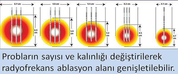 Radyofrekansta, probların sayısı ve kalınlığı değiştirilerek ablasyon alanı genişletilebilir.