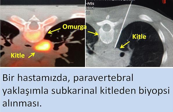 Mediastinal biyopsi, paravertebral yaklaşım.