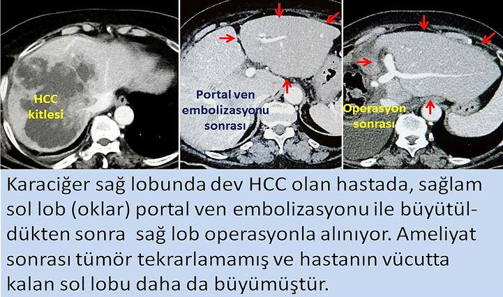 Portal ven embolizasyonu ile karaciğerin bir lobu büyütülerek diğer lobun operasyonla alınabilmesi sağlanır.