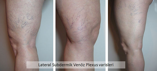 Lateral subdermik venöz plexus anne karnında iken kullandığımız normal damarların kalıntısıdır.