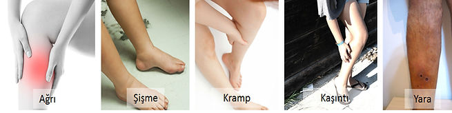 Varis hastalarında en sık rastlanan şikayetler ağrı, şişme, kramp, kaşıntı ve yara oluşumudur.