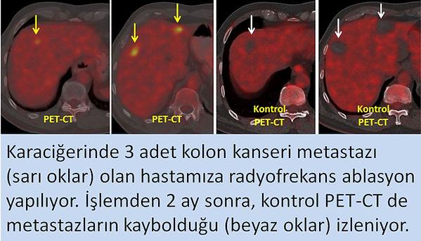 Kolon kanseri metastazlarında radyofrekans ablasyon ile tam yanıt.