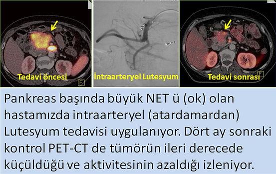 Nöroendokrin tümörlerde (NET) intraarteryel lutesyum tedavisi.