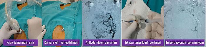 Miyom embolizasyonunun aşamaları