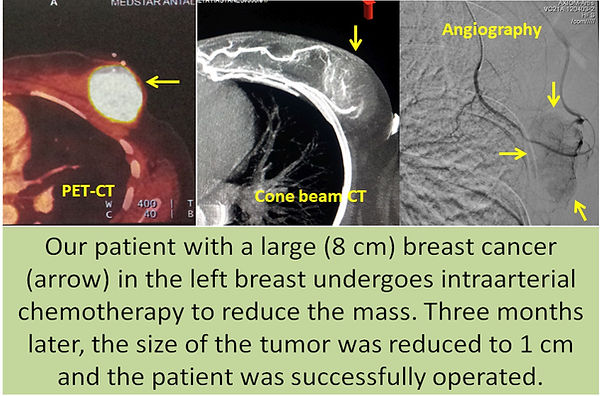 Intraarterial chemotherapy in breast cancer.