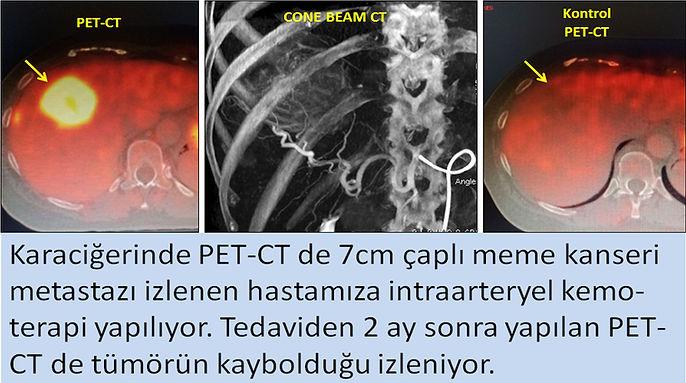 Meme kanseri karaciğer metastazında intraarteryel kemoterapi ile tam yanıt.