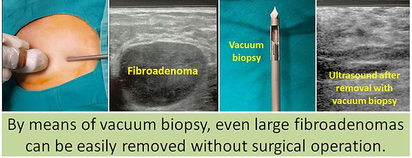 Most fibroadenomas can be completely removed with vacuum biopsy.