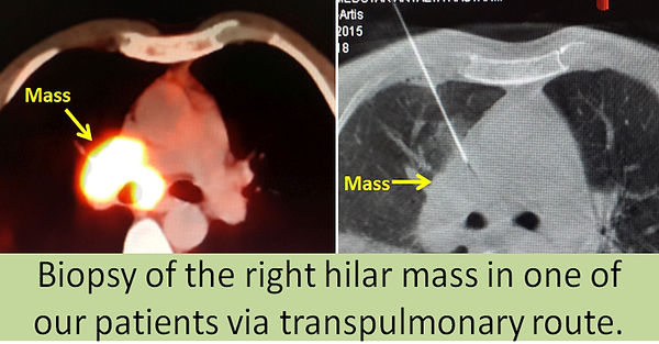 Percutaneous biopsy via transpulmonary approach.