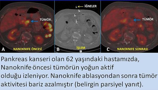 Nanoknife yapılan pankreas kanseri hastamızda PET-CT de parsiyel yanıt.