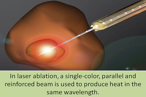 Laser uses a single color reinforced beam of light.