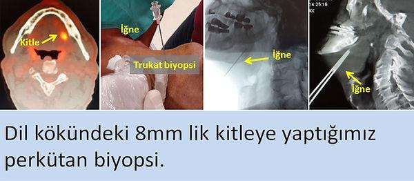 Dil kökündeki kitleye perkütan iğne biyopsisi.