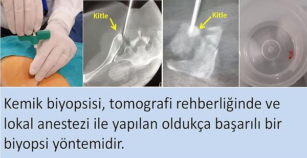 Tomografi rehberliğinde perkütan kemik biyopsisi.