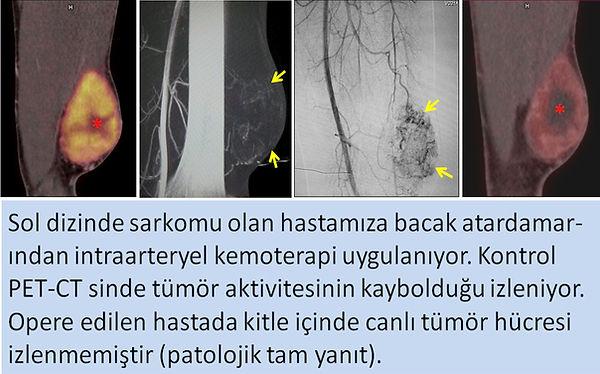 Ekstremite sarkomunda bacak atardamarından intraarteryel kemoterapi.