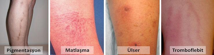 Skleroterapinin en sık rastlanan yan etkileri, pigmentasyon, matlaşma, ülser (yara) oluşumu ve tromboflebittir.