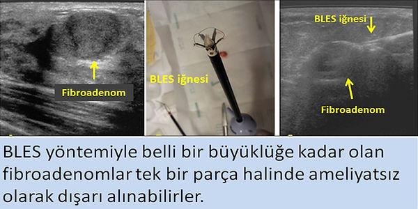 BLES yöntemiyle fibroadenomlar tek parça halinde dışarı alınabilirler.