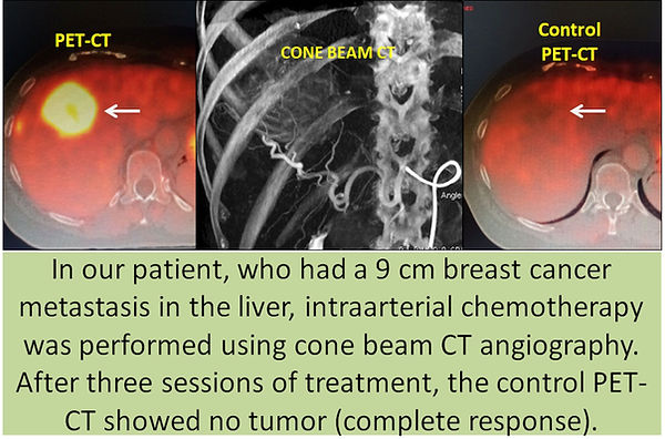 Intraarterial chemotherapy in breast cancer liver metastases.