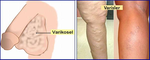 Varikosel bazı hastalarda bacak varisleri ile birlikte olabilir.