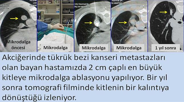 Akciğer tükrük bezi kanseri metastazlarına mikrodalga ablasyonu