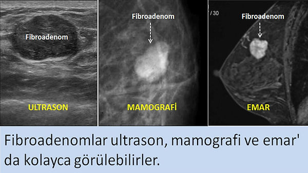Fibroadenomlar ultrason, mamografi ve emar' da kolayca görülebilirler.