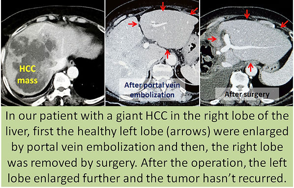 Portal vein embolization followed by right lobe resection in HCC.