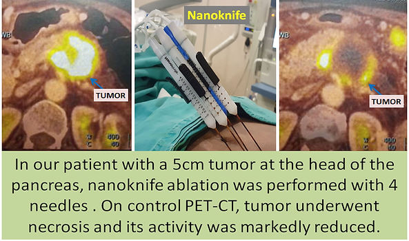 Nanoknife ablation is effective in pancreatic carcinoma.