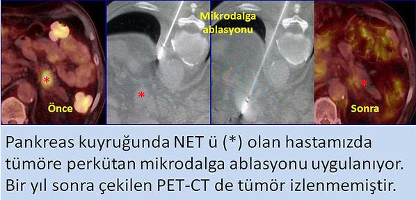 Nöroendokrin tümörlerde (NET) mikrodalga ablasyonu.