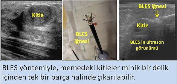 BLES yöntemiyle, memedekikitleler minik bir delikten tek bir parça halinde çıkarılabilir.