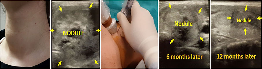 Radiofrequency ablation is an important treatment option for solid benign thyroid nodules.