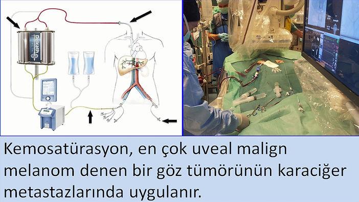 Malign melanom karaciğer metastazlarında kemosatürasyon tedavisi.