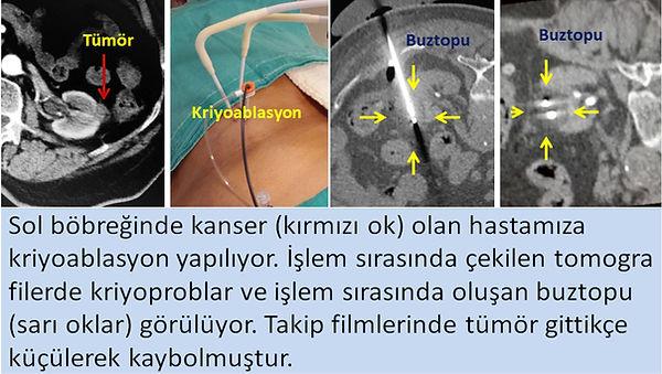 Kriyoablasyon, böbrek kanserini ameliyatsız olarak böbreği koruyarak tedavi eden bir yöntemdir.