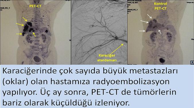 Karaciğer metastazlarında radyoembolizasyon, mikroküre tedavisi, TARE ile parsiyel yanıt.